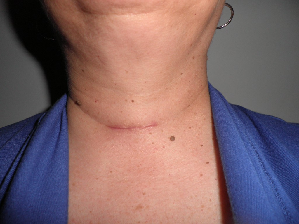 Twenty-five days after Parathyroidectomy